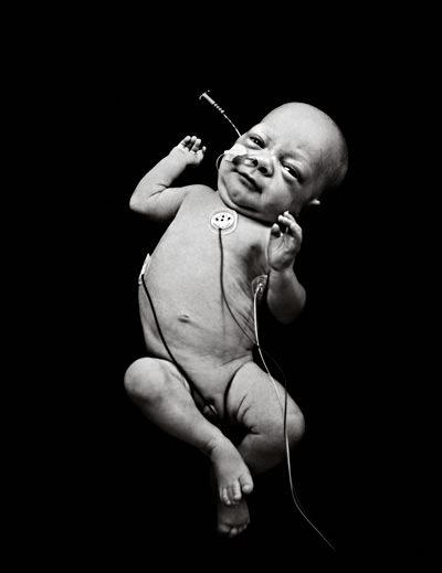 Über Leben 2009 – von zu früh geborenen Kindern